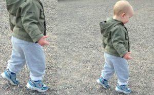 çocuklarda yürüyüş, parmak ucu yürüyüşü, çocuklarda parmak ucunda yürüme
