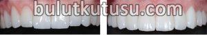 lamine diş uygulamaları, lamina kaplama, lamine diş fiyatları