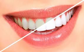 Estetik diş hekimliği nedir?