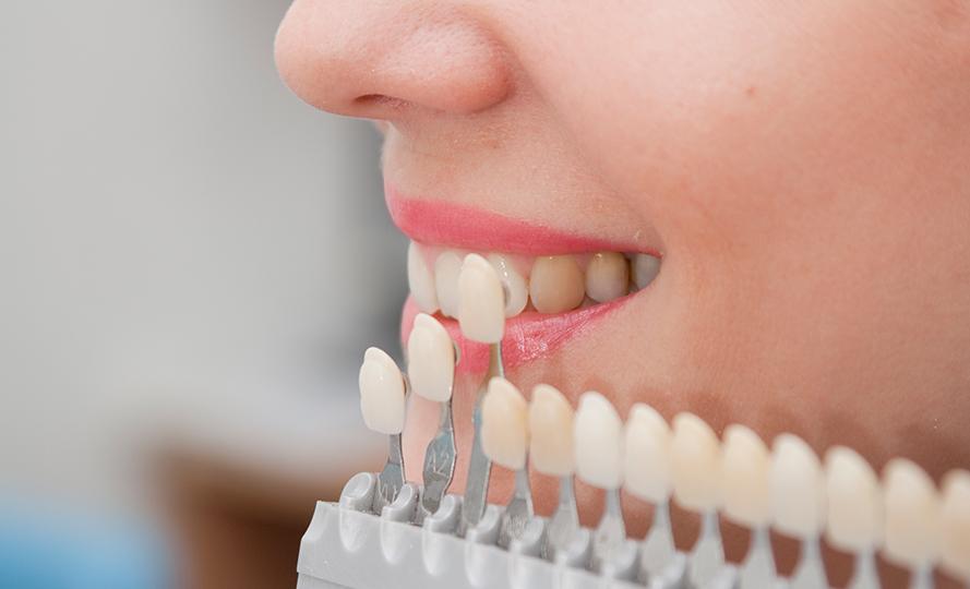Lamina diş fiyatları uygulandığı kişiye göre farklılık gösterir mi?