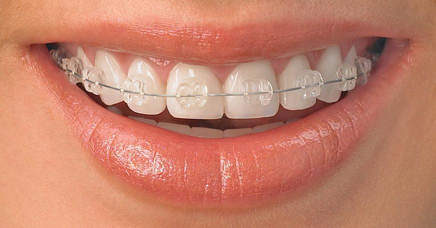 Şeffaf Diş Teli Taktırma