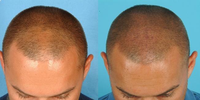 Profesyonel Seviyede Saç Ekim Doktoru