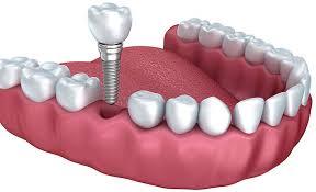 implant markaları, güvenilir implant markaları, hangi implant markaları güvenilir