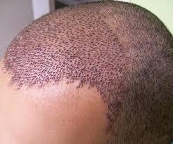 Deneyimli Saç Ekim Uzmanları Tercih Etmeniz Gerekiyor