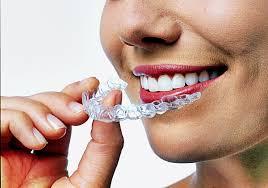 Görünmez Diş Teli Kullanımı Hakkında Bilinmesi Gerekenler