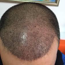 Profesyonel Saç Ekimi Doktoru