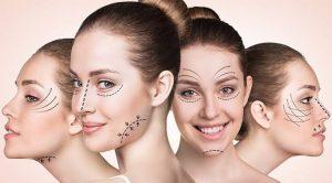 estetik ameliyat, estetik ameliyat nasıl yapılır