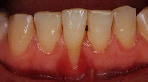 diş sararması, diş sararma nedenleri, dişler niçin sararır