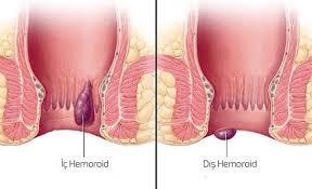 İç Hemoroid Tedavisi Yapımı