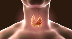 haşimato tiroidi belirtileri, haşimato tiroidi nedir, haşimato tiroidi nasıl tedavi edilir