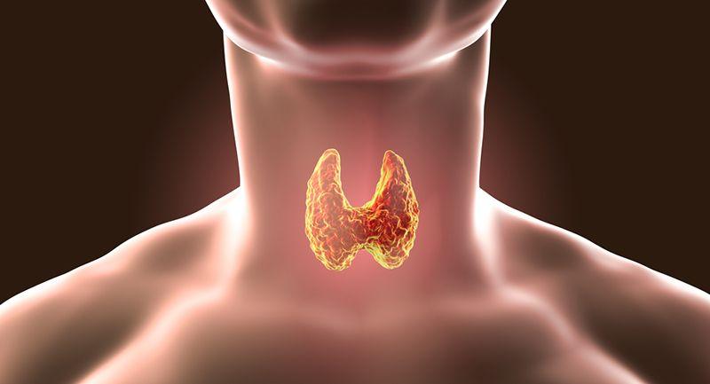 Haşimato Tiroidinin Belirtileri