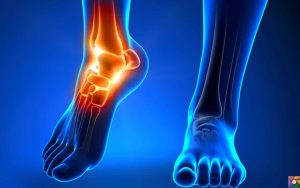 ayak bileği ağrıları, ayak bileği ağrısı geçirme, ayak bileği nasıl geçer