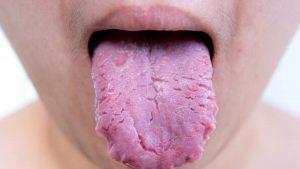 dil çatlağı, dil çatlağında bitkisel çözüm, dil yaralarında bitkisel çözümler