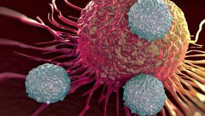 kanser belirtileri, kanser nedenleri, kanser neden olur